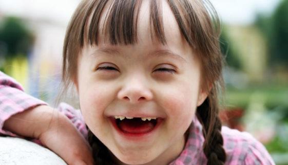 Espaço oferece atendimento para pessoas com Síndrome de Down