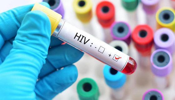 Pesquisadores divulgam tratamento que pode ser a cura do HIV