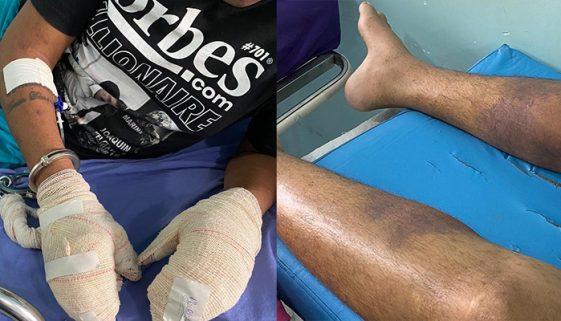 Doença desconhecida deixa a pele de presos em carne viva em RR