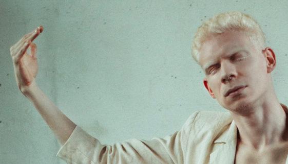 Médica cria instituto para combater preconceito contra pessoas albinas